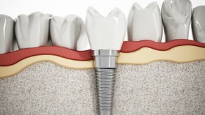 What to Expect During a Dental Implant Procedure