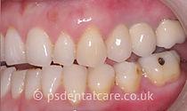 after-implants3.jpg