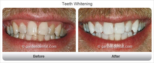 teethwhitening-bf-af4.jpg