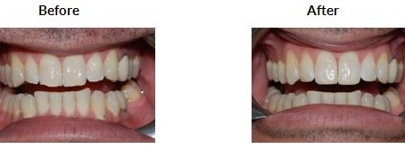 Composite Resin Bonding – what is it? And can I have it done at Hello Dental, Colchester?