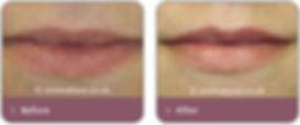 lip-enhancement.jpg