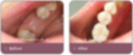 single-implant.jpg