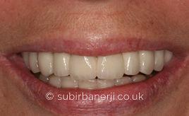 Dental Implants Dr Subir Banerji