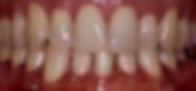 teeth-whitenig-before.png
