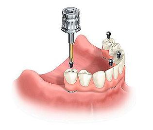 all-on-4-implants_2.jpg