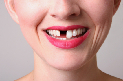 Ways to replace missing teeth