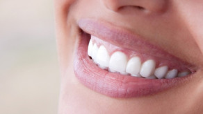 Facts About Tooth Whitening