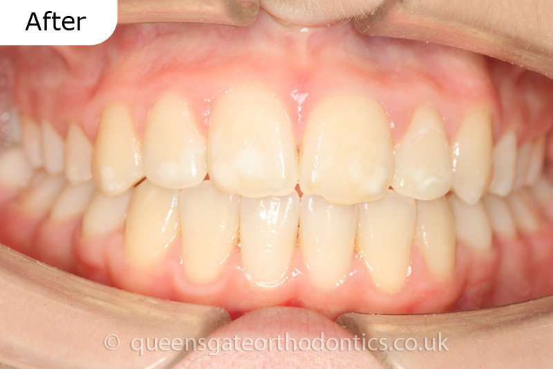 Orthodontic treatment using fixed braces without removing adult teeth to correct crowded, prominent teeth.