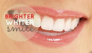 Topic of the Month : Feb 2016 – Tooth Whitening