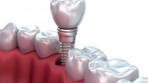 Upgrade your dentures to dental implants….