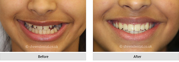 before-after-ortho9