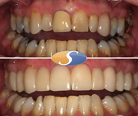 Smile makeover - all-ceramic crowns-3