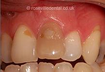 Smile-Restoration-before.jpg