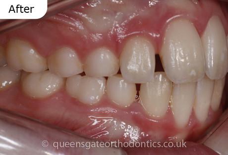 Interceptive orthodontic treatment using a Myobrace
