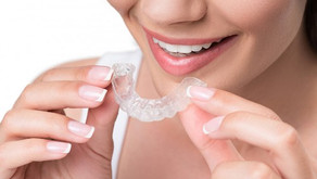 New year, new smile? Top 6 benefits of Invisalign aligners