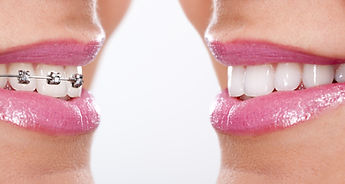 Cosmetic Braces in Surrey