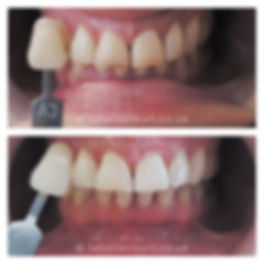 before-after-2-small.jpg