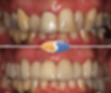 Smile makeover - all-ceramic crowns