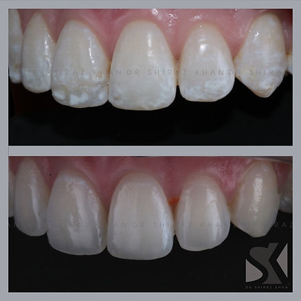 White Spot Removal before and after