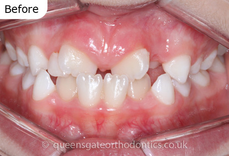 Interceptive treatment with fixed braces to correct an anterior crossbite