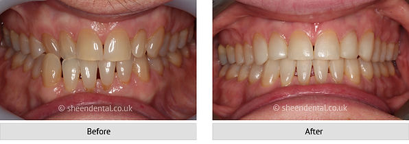before-after-ortho31