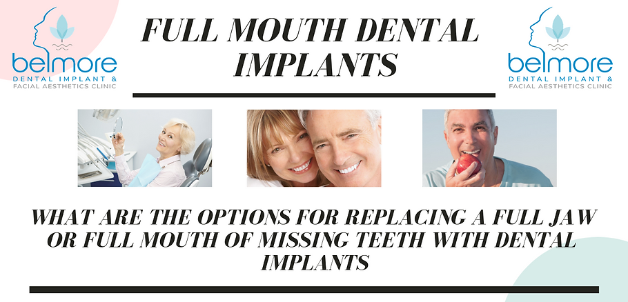Full mouth dental implants.png