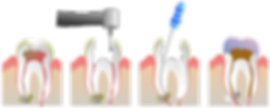 640px-Root_Canal_Illustration_Molar.svg.