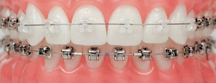 damon-system-braces.jpg