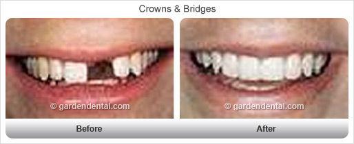 crowns-bf-af2.jpg