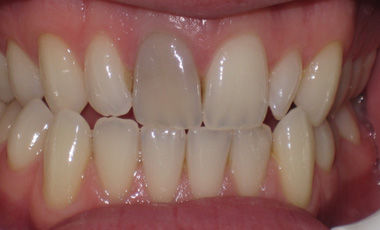 Root Filled Front Tooth