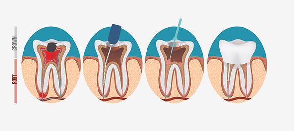 root canal procedure.jpg