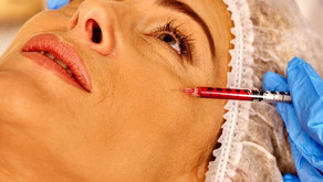 Botox Now Viewed As a Preventive Procedure