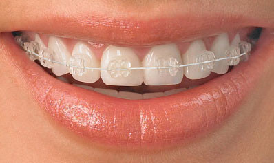 How can Cfast braces benefit me