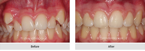before-after-ortho70.jpg