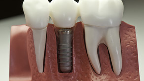 Dental Implant Function Similarly To Natural Teeth