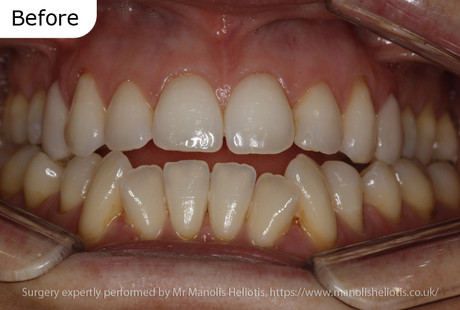 Case report 4: Increased growth of the lower jaw leading to an anterior open bite