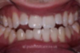 teeth-whitening-a.jpg