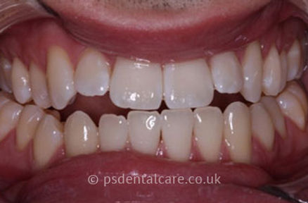 teeth-whitening-a.jpg