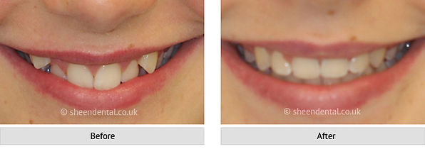 before-after-ortho71.jpg