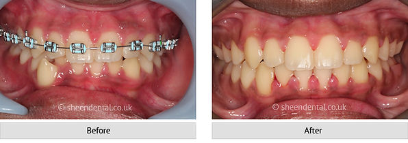 before-after-ortho18