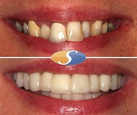 Smile makeover - all-ceramic crowns-4