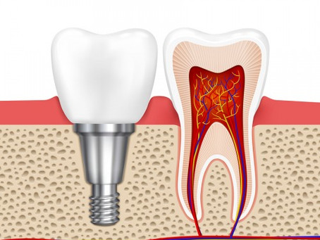 Why are dental implants so highly regarded?