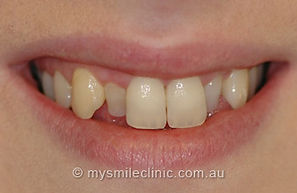 Teeth Straightening Elsternwick