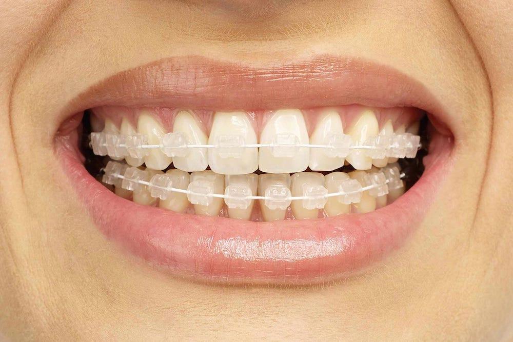 Orthodontics in Marylebone