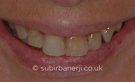 Dental Implants Subir Banerji