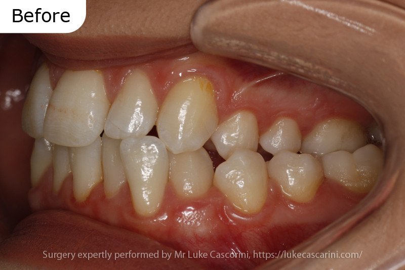 Case report 3: Asymmetrical growth of the lower jaw leading to facial asymmetry and a traumatic bite