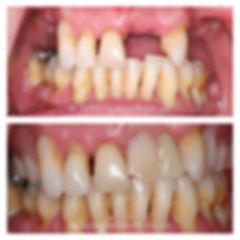 before-after10.jpg