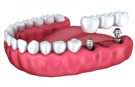 What Are Overdentures?