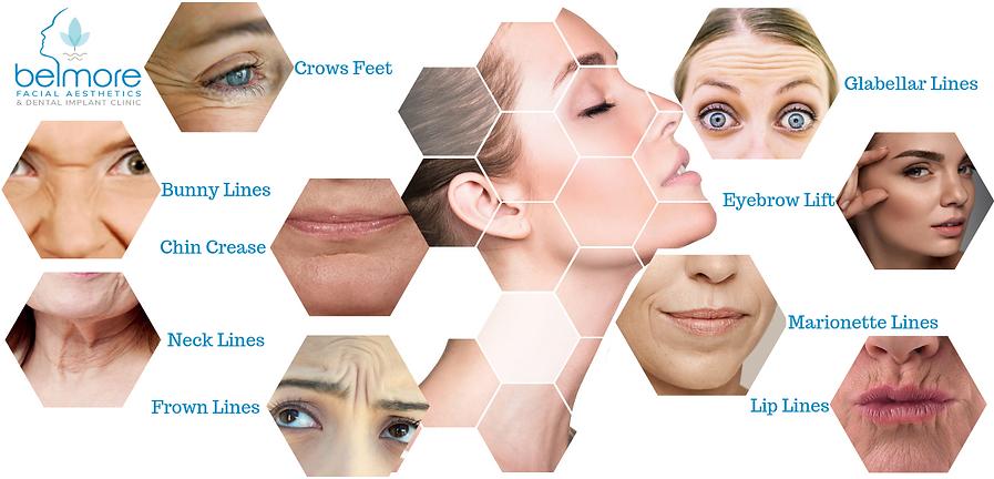 Botox Areas Belmore Dental