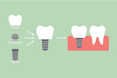 dental implants maidstone